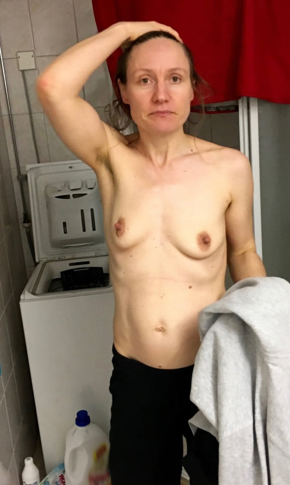 Skinny Mature Fake Tits